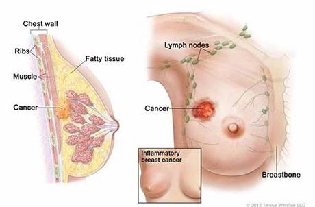 BV Ung bướu TP.HCM: Kỹ thuật sinh thiết khối u có hỗ trợ thiết bị hút chân không – Đánh bay những khối u tuyến vú, ít xâm lấn