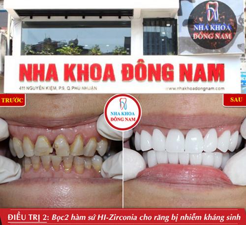 TP.HCM: Top 5 Địa Điểm Trồng Răng Sứ Đẹp Nhất